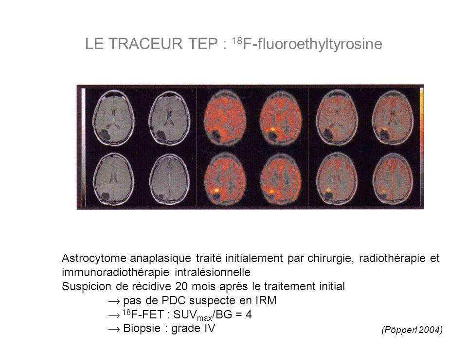 Astrocytome anaplasique traité initialement par chirurgie, radiothérapie et immunoradiothérapie intralésionnelle Suspicion de récidive 20 mois après le traitement initial pas de PDC suspecte en IRM 18 F-FET : SUV max /BG = 4 Biopsie : grade IV LE TRACEUR TEP : 18 F-fluoroethyltyrosine (Pöpperl 2004)