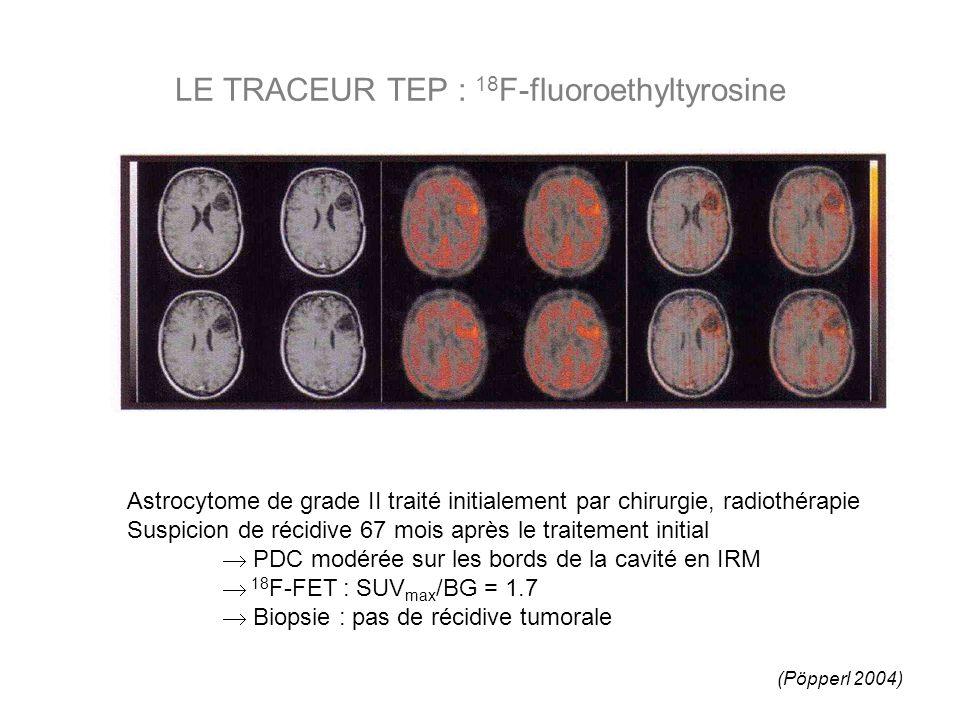 LE TRACEUR TEP : 18 F-fluoroethyltyrosine Astrocytome de grade II traité initialement par chirurgie, radiothérapie Suspicion de récidive 67 mois après le traitement initial PDC modérée sur les bords de la cavité en IRM 18 F-FET : SUV max /BG = 1.7 Biopsie : pas de récidive tumorale (Pöpperl 2004)