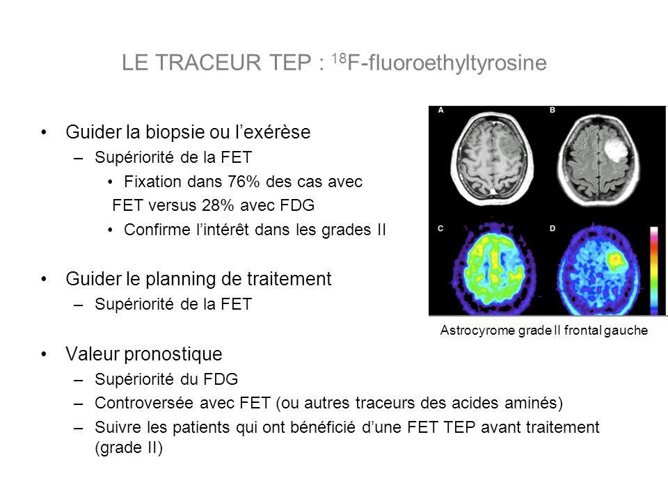 LE TRACEUR TEP : 18 F-fluoroethyltyrosine Guider la biopsie ou lexérèse –Supériorité de la FET Fixation dans 76% des cas avec FET versus 28% avec FDG Confirme lintérêt dans les grades II Guider le planning de traitement –Supériorité de la FET Valeur pronostique –Supériorité du FDG –Controversée avec FET (ou autres traceurs des acides aminés) –Suivre les patients qui ont bénéficié dune FET TEP avant traitement (grade II) Astrocyrome grade II frontal gauche