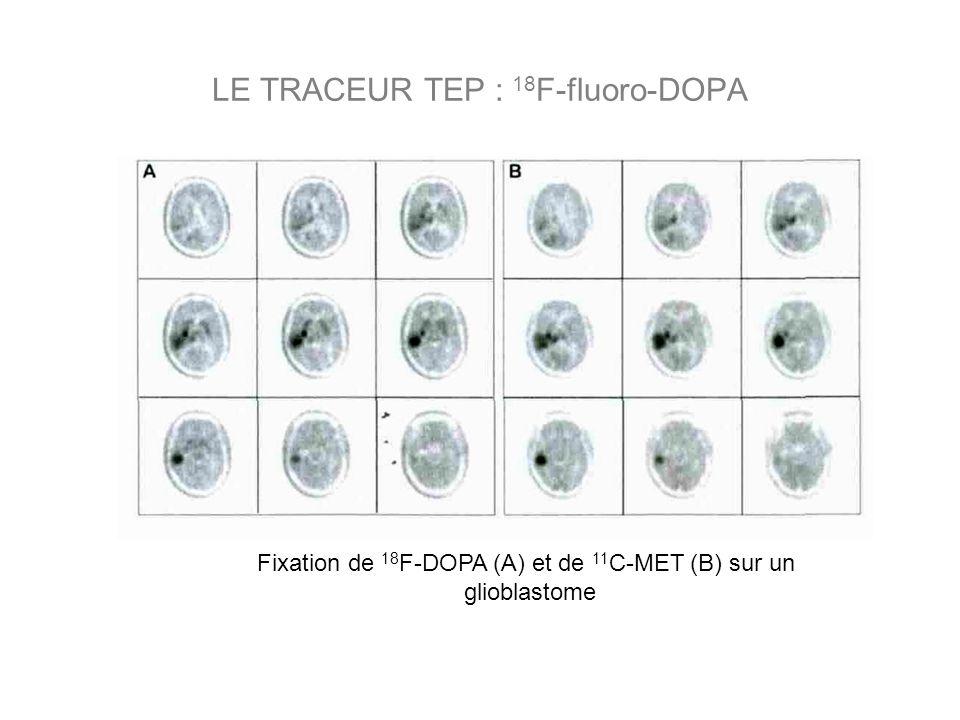 Fixation de 18 F-DOPA (A) et de 11 C-MET (B) sur un glioblastome