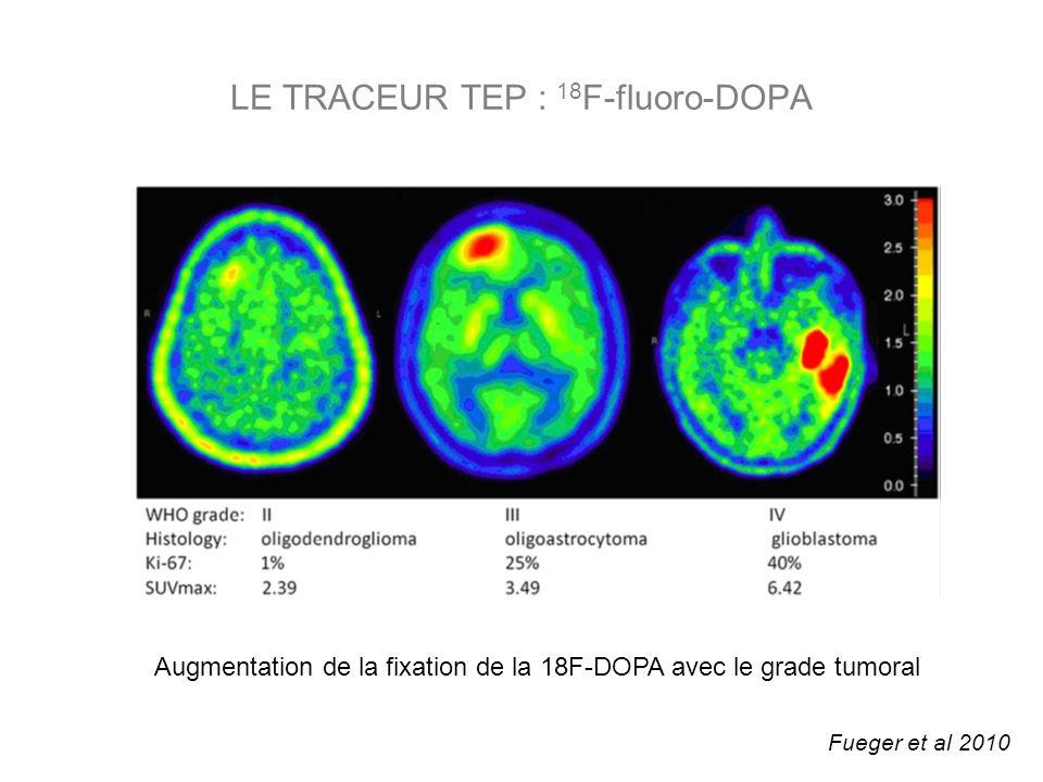 LE TRACEUR TEP : 18 F-fluoro-DOPA Fueger et al 2010 Augmentation de la fixation de la 18F-DOPA avec le grade tumoral