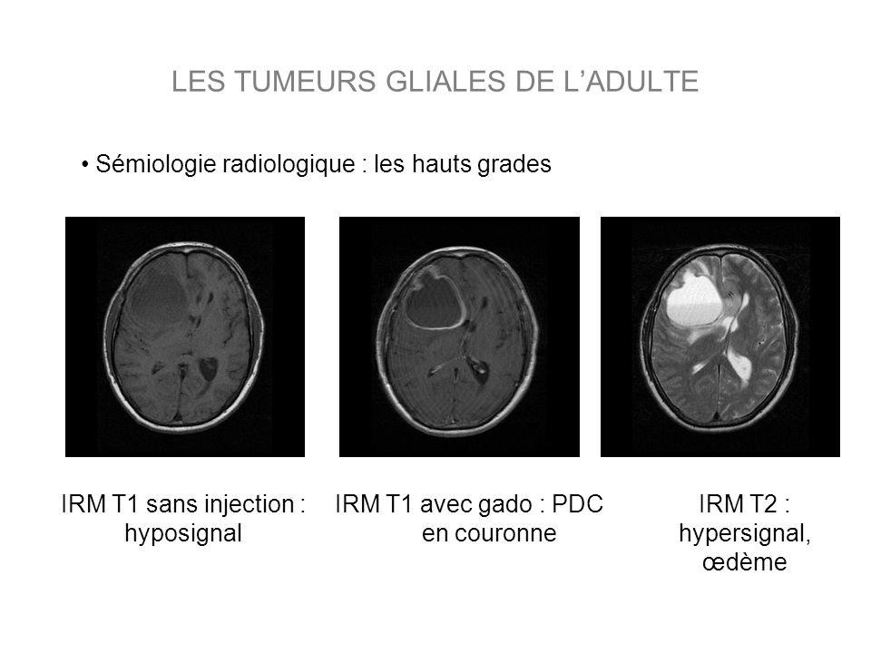 LES TUMEURS GLIALES DE LADULTE IRM T1 avec gado : PDC en couronne IRM T2 : hypersignal, œdème IRM T1 sans injection : hyposignal Sémiologie radiologiq