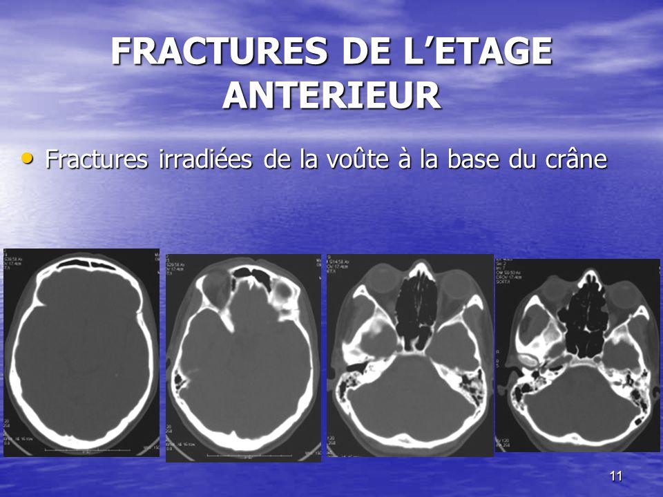 11 FRACTURES DE LETAGE ANTERIEUR Fractures irradiées de la voûte à la base du crâne Fractures irradiées de la voûte à la base du crâne