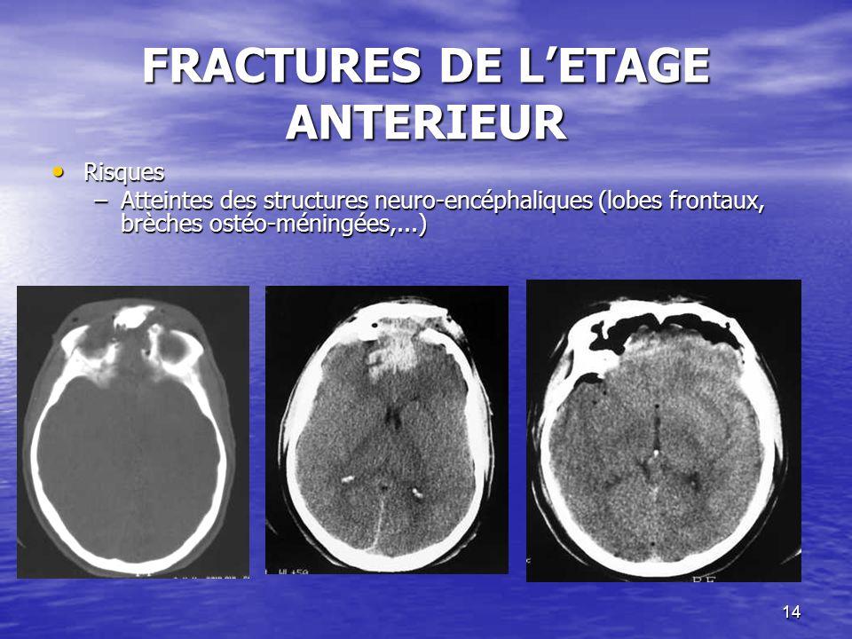 14 FRACTURES DE LETAGE ANTERIEUR Risques Risques –Atteintes des structures neuro-encéphaliques (lobes frontaux, brèches ostéo-méningées,...)