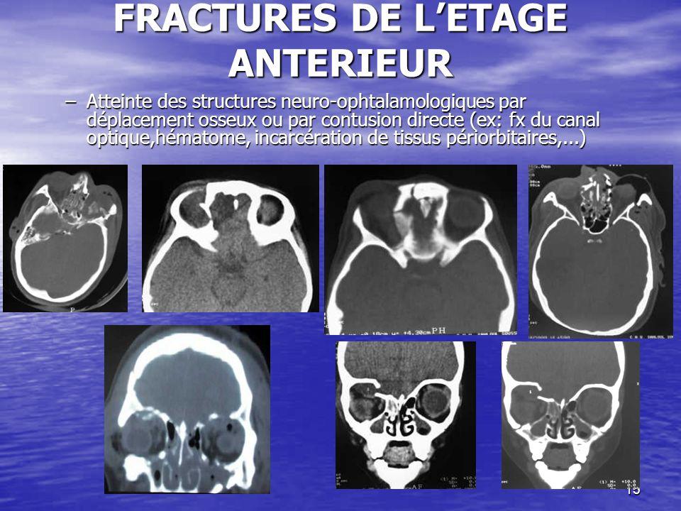15 FRACTURES DE LETAGE ANTERIEUR –Atteinte des structures neuro-ophtalamologiques par déplacement osseux ou par contusion directe (ex: fx du canal optique,hématome, incarcération de tissus périorbitaires,...)