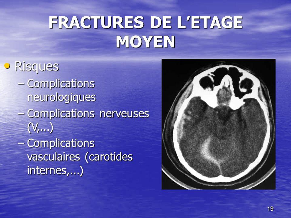 19 FRACTURES DE LETAGE MOYEN Risques Risques –Complications neurologiques –Complications nerveuses (V,...) –Complications vasculaires (carotides internes,...)
