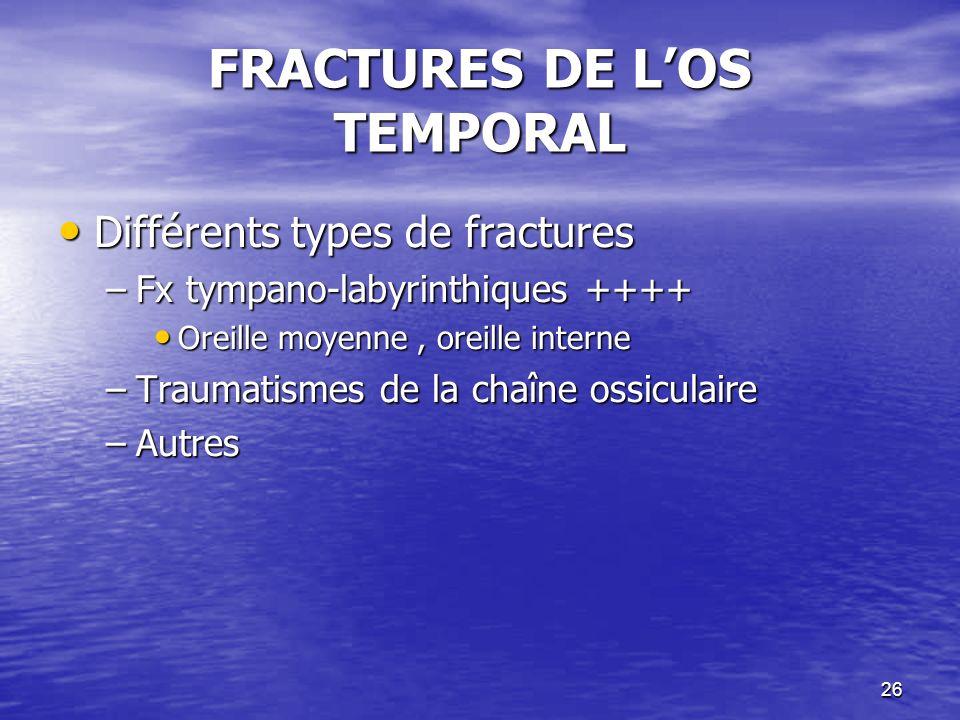 26 FRACTURES DE LOS TEMPORAL Différents types de fractures Différents types de fractures –Fx tympano-labyrinthiques ++++ Oreille moyenne, oreille interne Oreille moyenne, oreille interne –Traumatismes de la chaîne ossiculaire –Autres