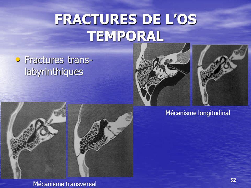 32 FRACTURES DE LOS TEMPORAL Fractures trans- labyrinthiques Fractures trans- labyrinthiques Mécanisme longitudinal Mécanisme transversal