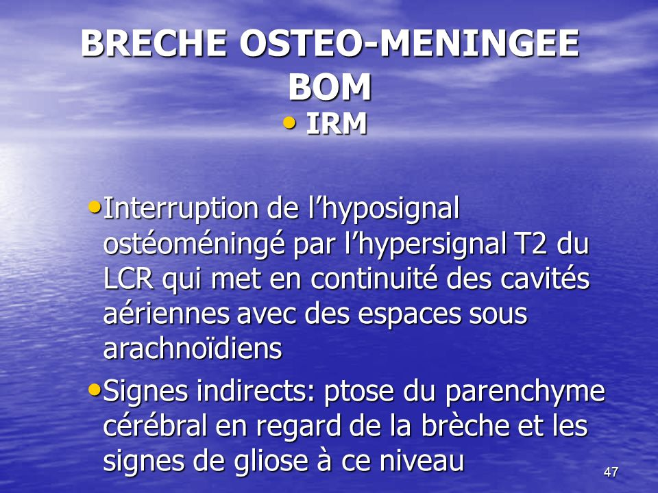 47 BRECHE OSTEO-MENINGEE BOM IRM IRM Interruption de lhyposignal ostéoméningé par lhypersignal T2 du LCR qui met en continuité des cavités aériennes avec des espaces sous arachnoïdiens Interruption de lhyposignal ostéoméningé par lhypersignal T2 du LCR qui met en continuité des cavités aériennes avec des espaces sous arachnoïdiens Signes indirects: ptose du parenchyme cérébral en regard de la brèche et les signes de gliose à ce niveau Signes indirects: ptose du parenchyme cérébral en regard de la brèche et les signes de gliose à ce niveau