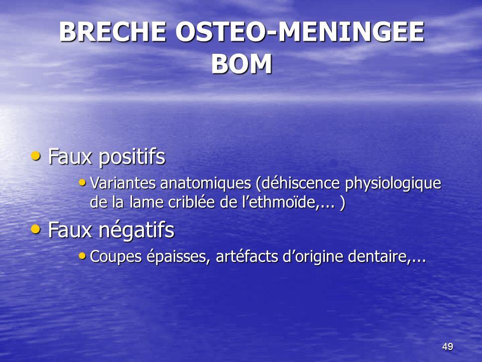 49 BRECHE OSTEO-MENINGEE BOM Faux positifs Faux positifs Variantes anatomiques (déhiscence physiologique de la lame criblée de lethmoïde,...