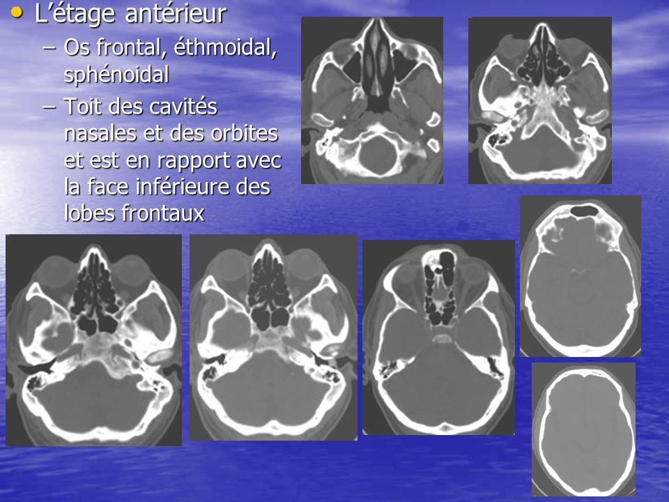 65 Létage antérieur Létage antérieur –Os frontal, éthmoidal, sphénoidal –Toit des cavités nasales et des orbites et est en rapport avec la face inférieure des lobes frontaux