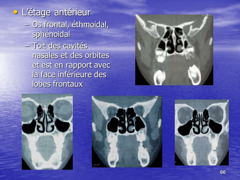 66 Létage antérieur Létage antérieur –Os frontal, éthmoidal, sphénoidal –Toit des cavités nasales et des orbites et est en rapport avec la face inférieure des lobes frontaux