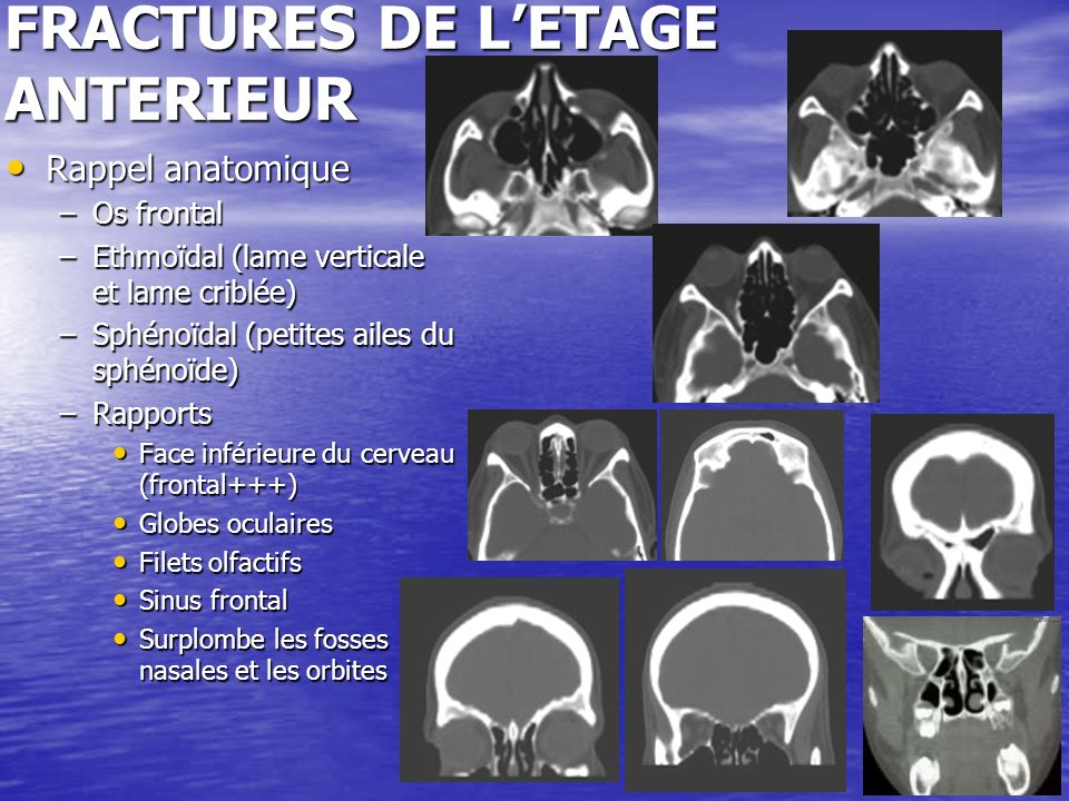 38 FRACTURES DE LETAGE POSTERIEUR Rappel anatomique Rappel anatomique –Gouttière basilaire, trou occipital, protubérance occipitale interne –Comporte latéralement : masses latérales de loccipital, le canal condylien, les foramens jugulaires, les CAI, facettes cérébelleuses de loccipital, gouttière du sinus latéral