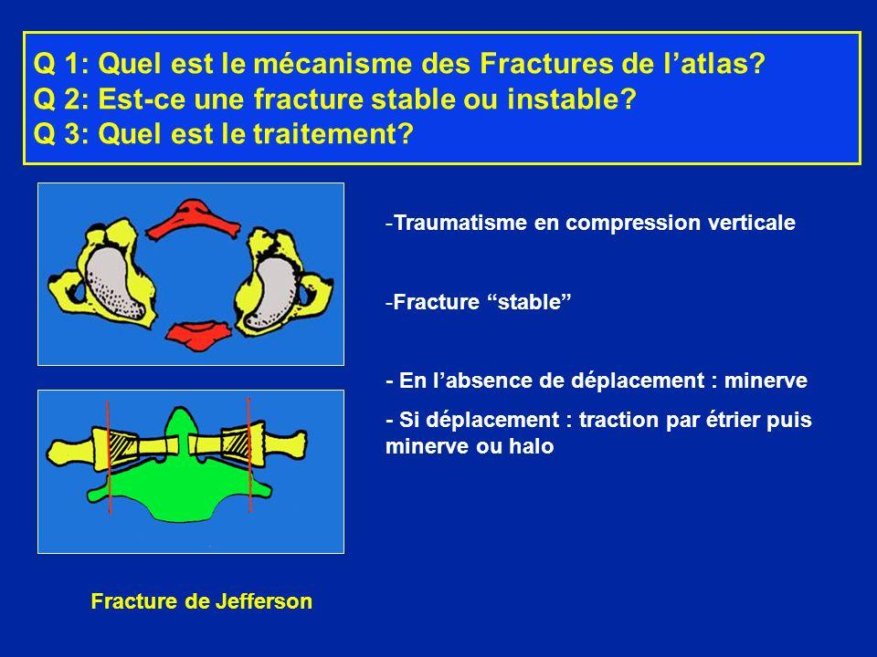 Fracture de Jefferson -Traumatisme en compression verticale -Fracture stable - En labsence de déplacement : minerve - Si déplacement : traction par ét