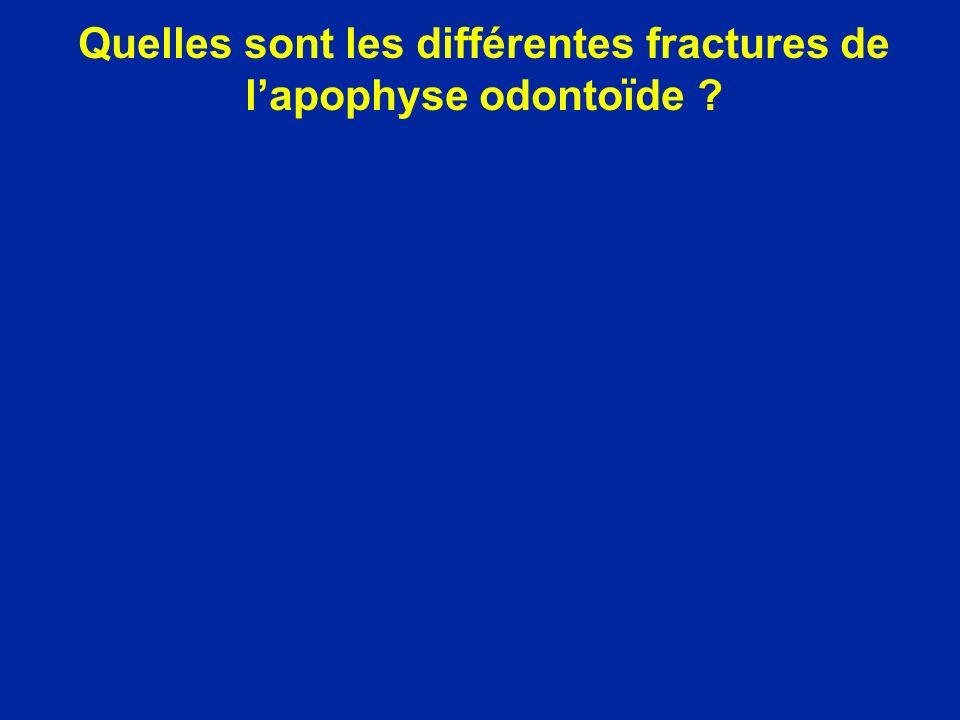 Quelles sont les différentes fractures de lapophyse odontoïde ?
