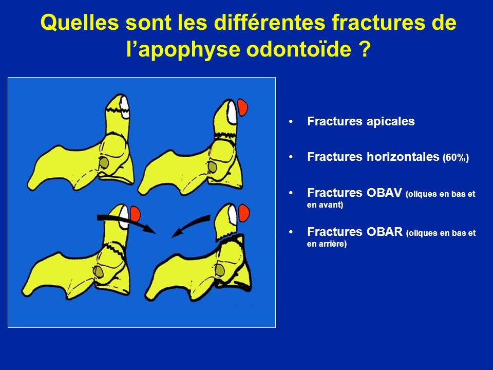 Fractures apicales Fractures horizontales (60%) Fractures OBAV (oliques en bas et en avant) Fractures OBAR (oliques en bas et en arrière)