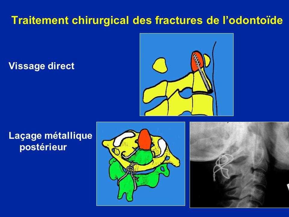 Traitement chirurgical des fractures de lodontoïde Vissage direct Laçage métallique postérieur
