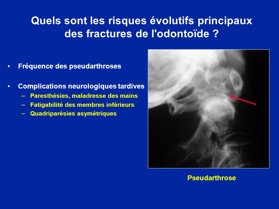 Quels sont les risques évolutifs principaux des fractures de l'odontoïde ? Fréquence des pseudarthroses Complications neurologiques tardives –Paresthé