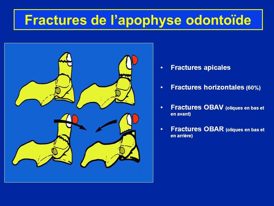 Fractures de lapophyse odontoïde Fractures apicales Fractures horizontales (60%) Fractures OBAV (oliques en bas et en avant) Fractures OBAR (oliques e