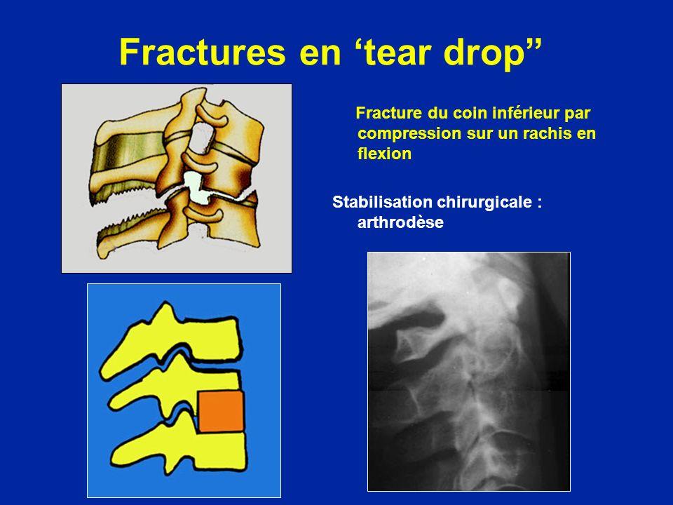 Fractures en tear drop Fracture du coin inférieur par compression sur un rachis en flexion Stabilisation chirurgicale : arthrodèse