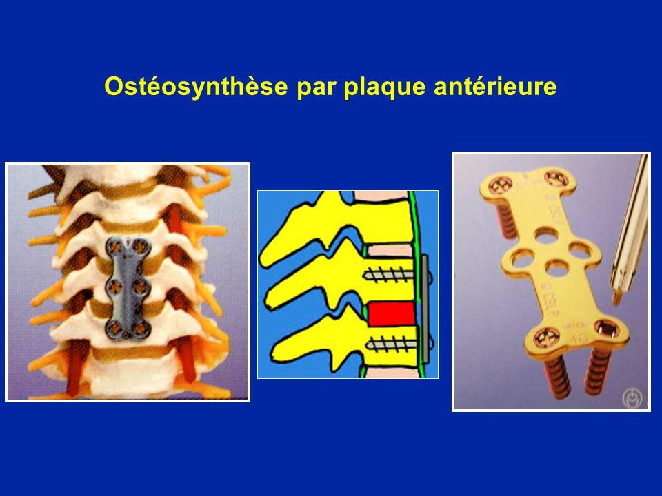 Ostéosynthèse par plaque antérieure