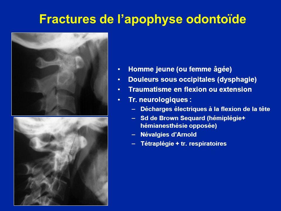 Fractures de lapophyse odontoïde Homme jeune (ou femme âgée) Douleurs sous occipitales (dysphagie) Traumatisme en flexion ou extension Tr. neurologiqu