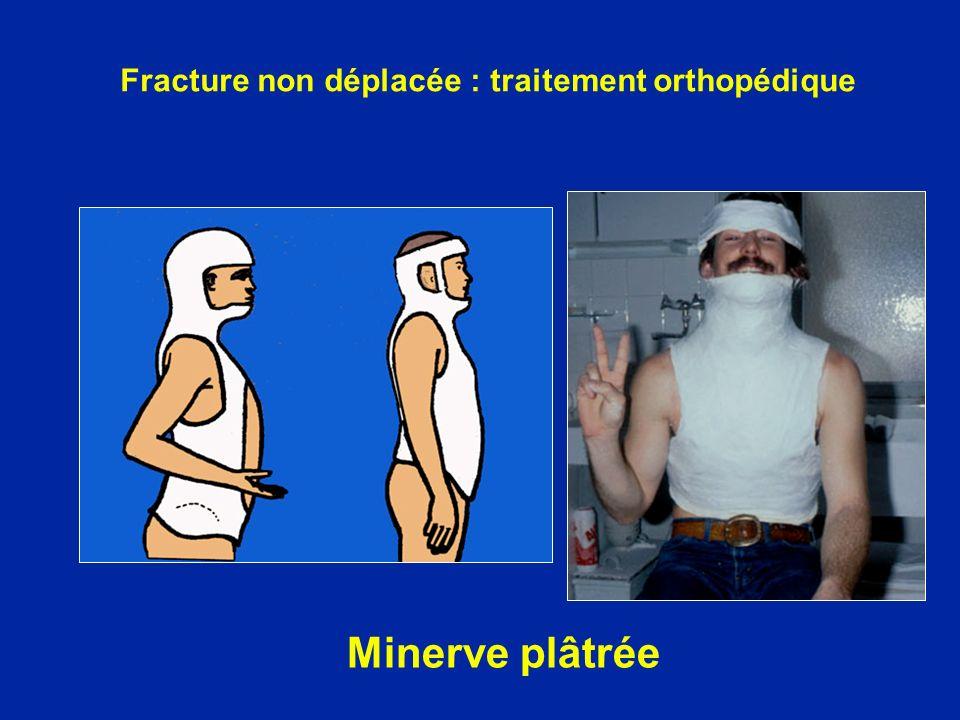 Minerve plâtrée Fracture non déplacée : traitement orthopédique