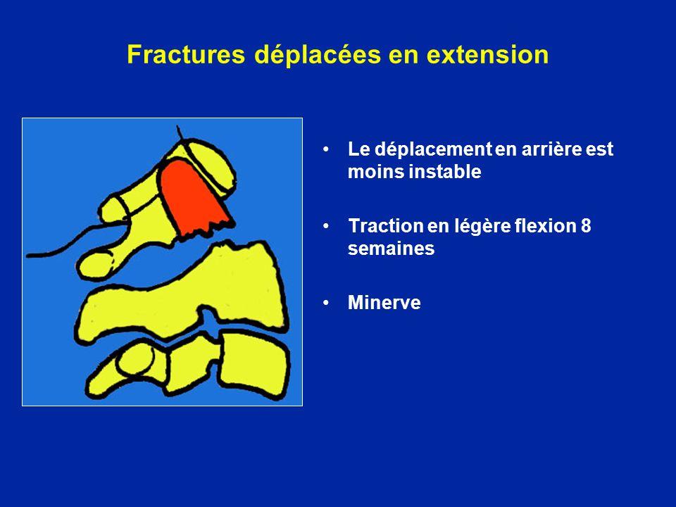 Le déplacement en arrière est moins instable Traction en légère flexion 8 semaines Minerve Fractures déplacées en extension