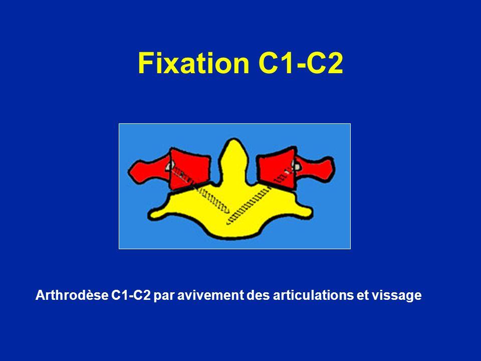 Fixation C1-C2 Arthrodèse C1-C2 par avivement des articulations et vissage