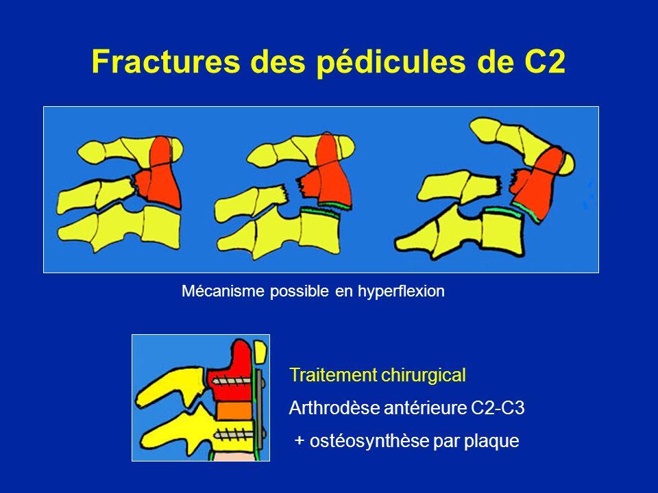 Fractures des pédicules de C2 Traitement chirurgical Arthrodèse antérieure C2-C3 + ostéosynthèse par plaque Mécanisme possible en hyperflexion