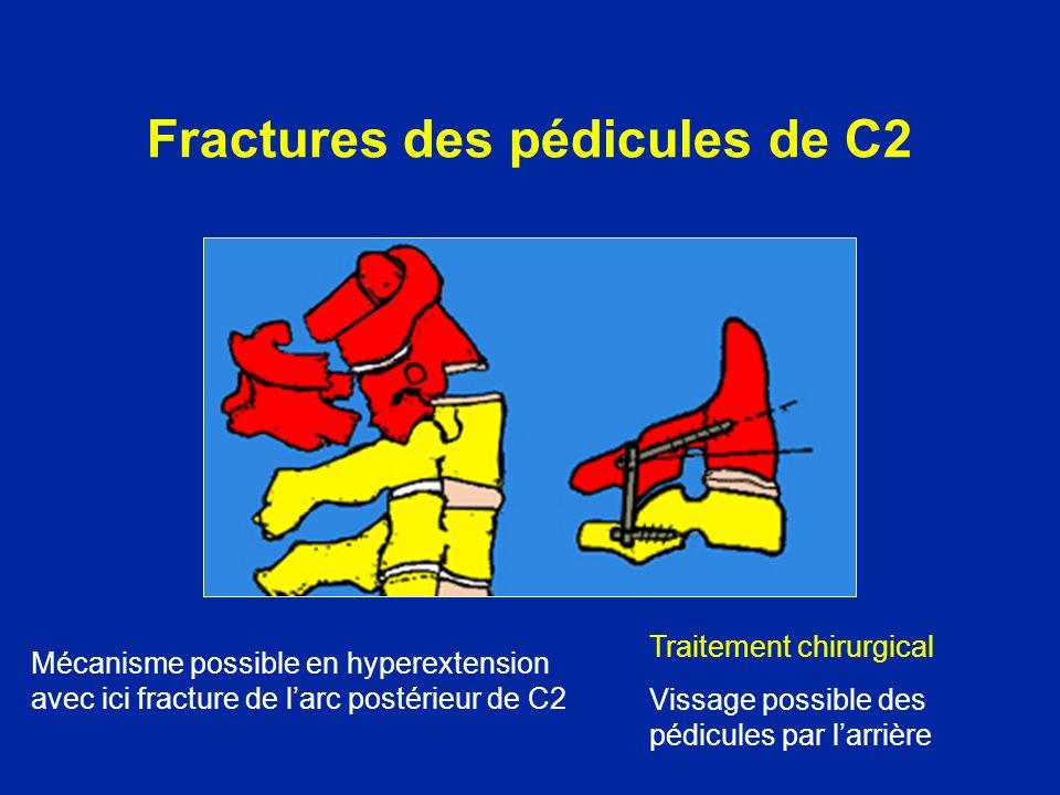 Fractures des pédicules de C2 Mécanisme possible en hyperextension avec ici fracture de larc postérieur de C2 Traitement chirurgical Vissage possible