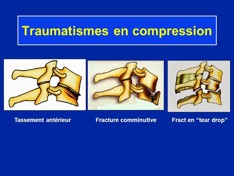Traumatismes en compression Tassement antérieur Fracture comminutive Fract en tear drop
