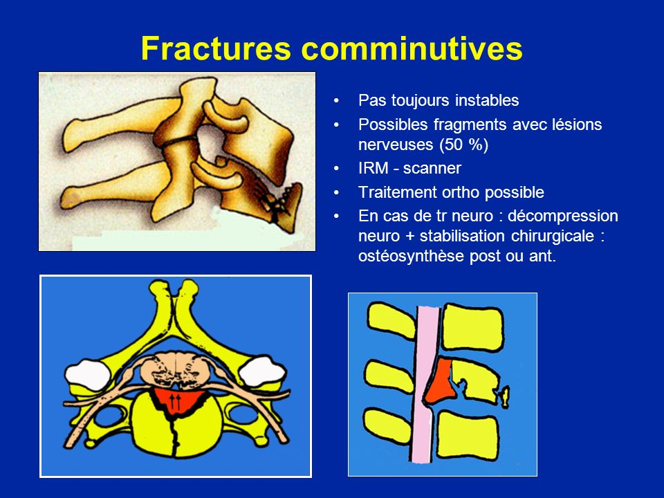 Fractures comminutives Pas toujours instables Possibles fragments avec lésions nerveuses (50 %) IRM - scanner Traitement ortho possible En cas de tr neuro : décompression neuro + stabilisation chirurgicale : ostéosynthèse post ou ant.