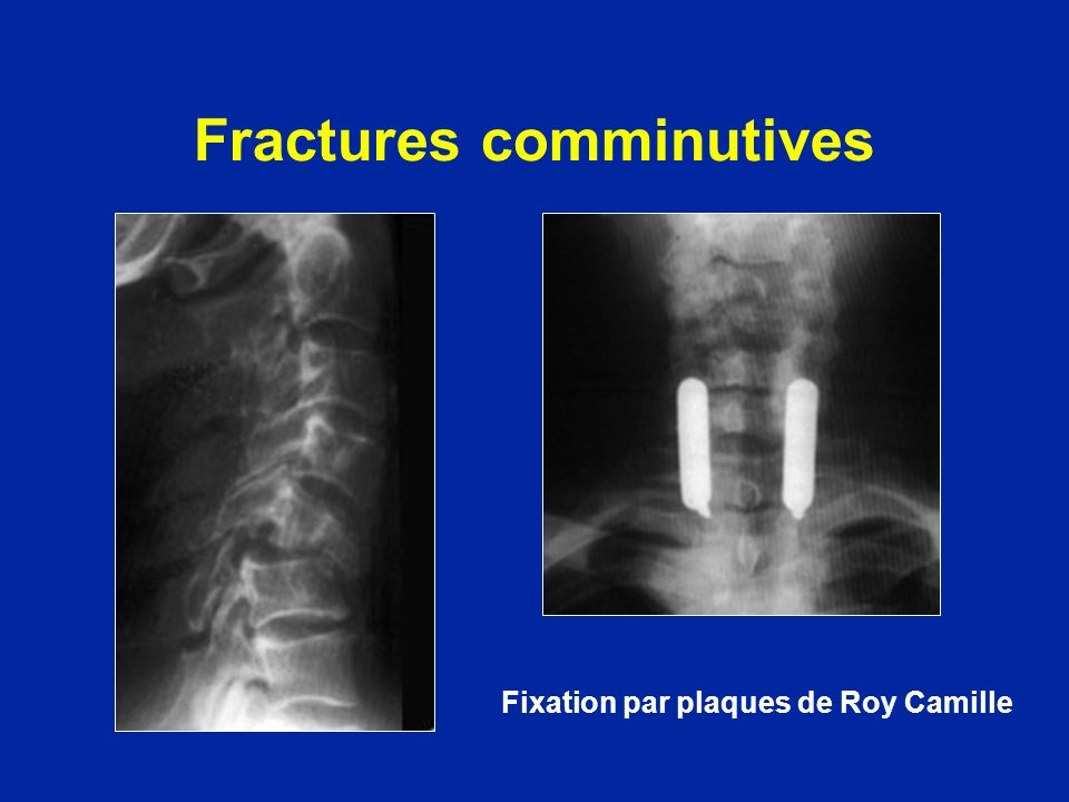 Fractures comminutives Fixation par plaques de Roy Camille