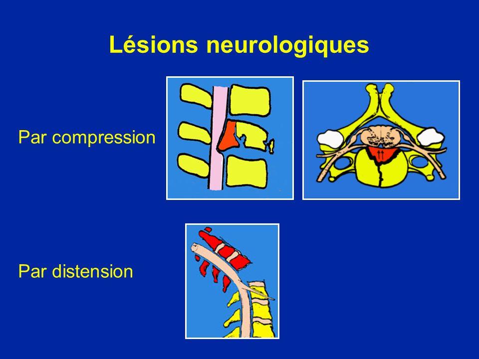 Lésions neurologiques Par compression Par distension