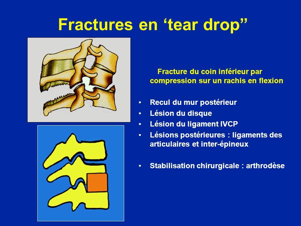 Fractures en tear drop Fracture du coin inférieur par compression sur un rachis en flexion Recul du mur postérieur Lésion du disque Lésion du ligament