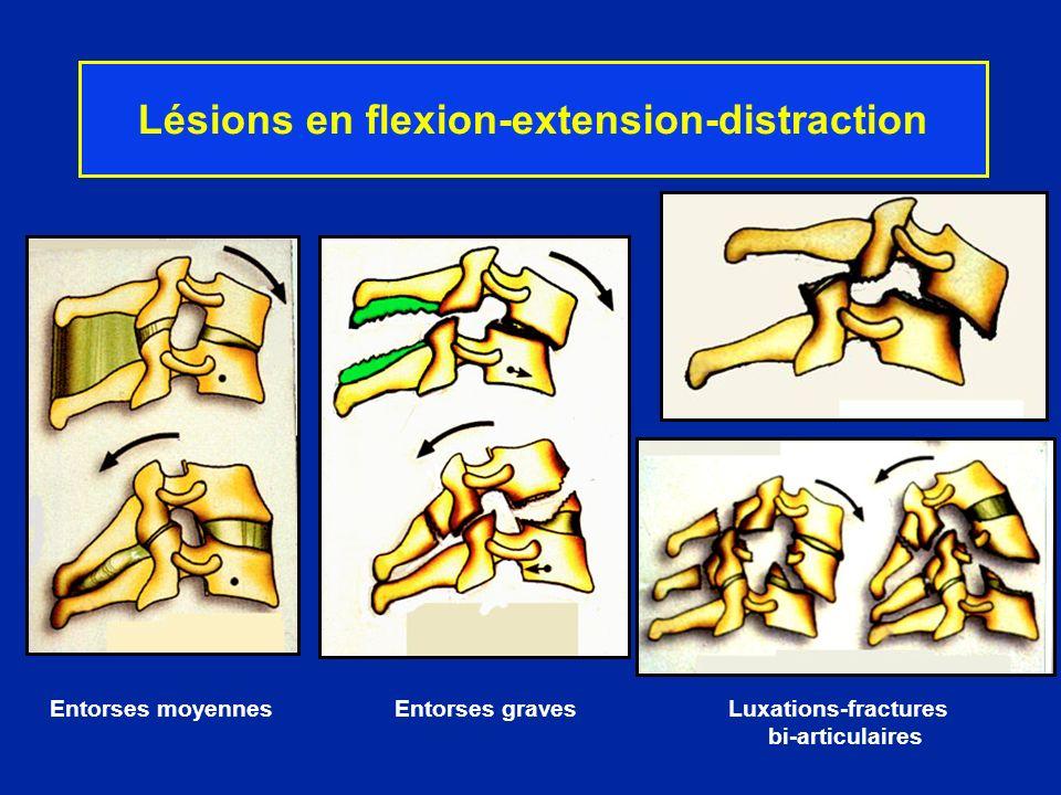 Lésions en flexion-extension-distraction Entorses moyennes Entorses graves Luxations-fractures bi-articulaires