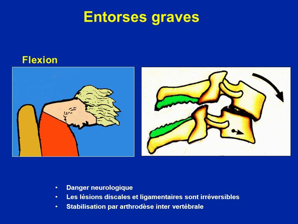Entorses graves Danger neurologique Les lésions discales et ligamentaires sont irréversibles Stabilisation par arthrodèse inter vertébrale Flexion