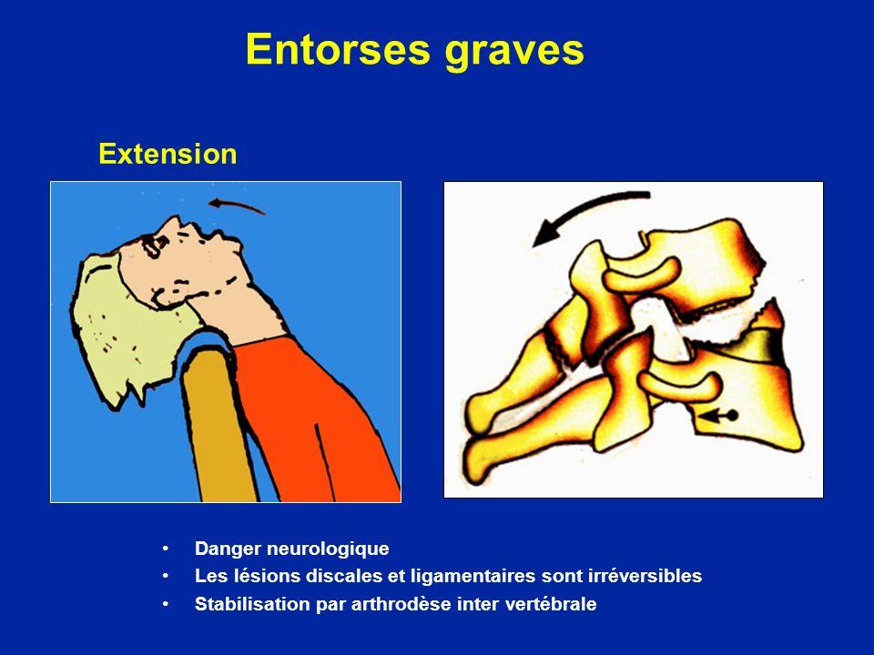 Entorses graves Danger neurologique Les lésions discales et ligamentaires sont irréversibles Stabilisation par arthrodèse inter vertébrale Extension