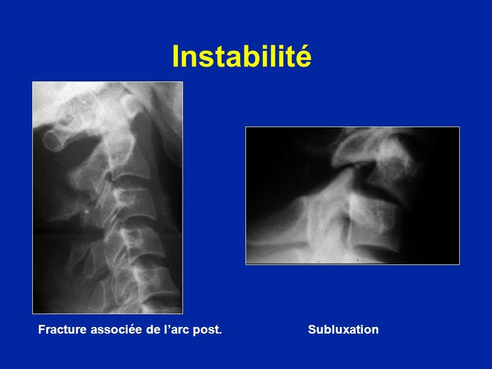 Instabilité Fracture associée de larc post. Subluxation