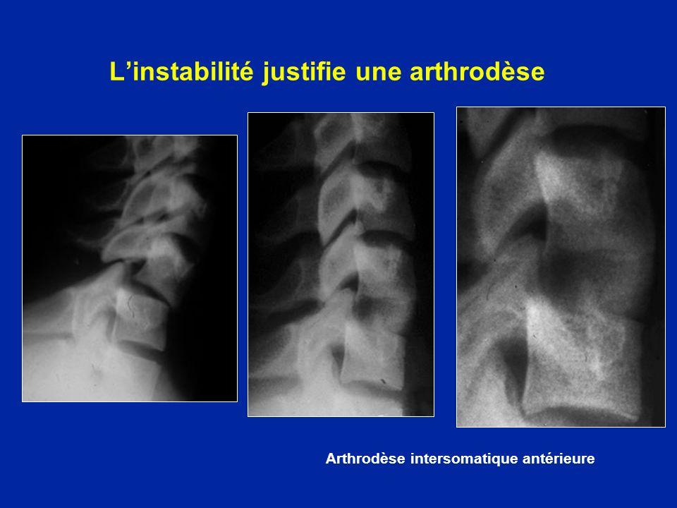 Linstabilité justifie une arthrodèse Arthrodèse intersomatique antérieure