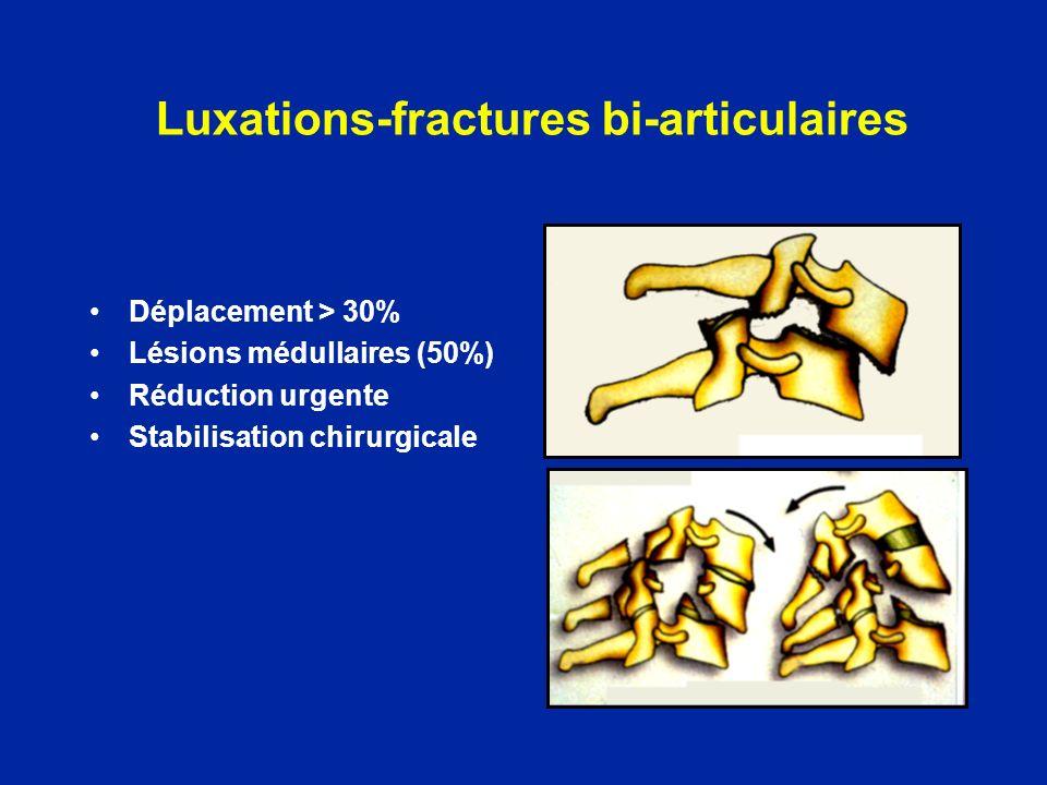 Luxations-fractures bi-articulaires Déplacement > 30% Lésions médullaires (50%) Réduction urgente Stabilisation chirurgicale