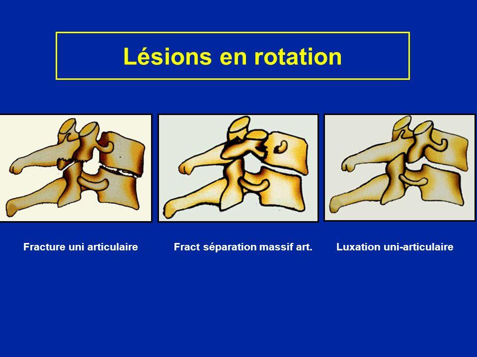 Lésions en rotation Fracture uni articulaire Fract séparation massif art. Luxation uni-articulaire