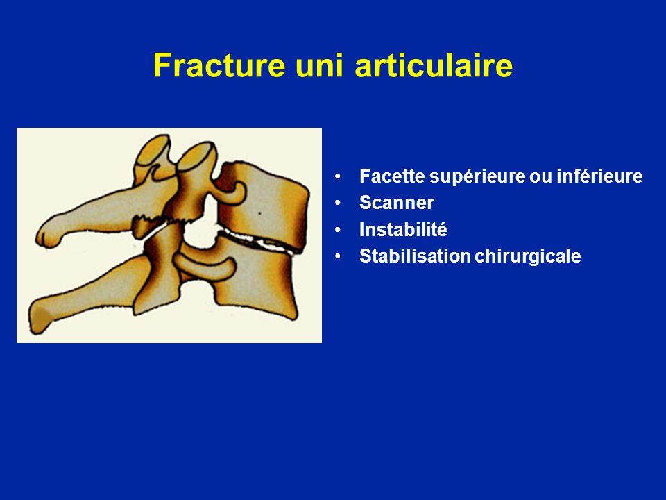 Fracture uni articulaire Facette supérieure ou inférieure Scanner Instabilité Stabilisation chirurgicale