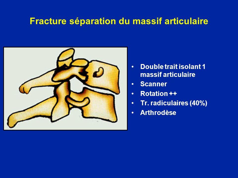 Fracture séparation du massif articulaire Double trait isolant 1 massif articulaire Scanner Rotation ++ Tr. radiculaires (40%) Arthrodèse