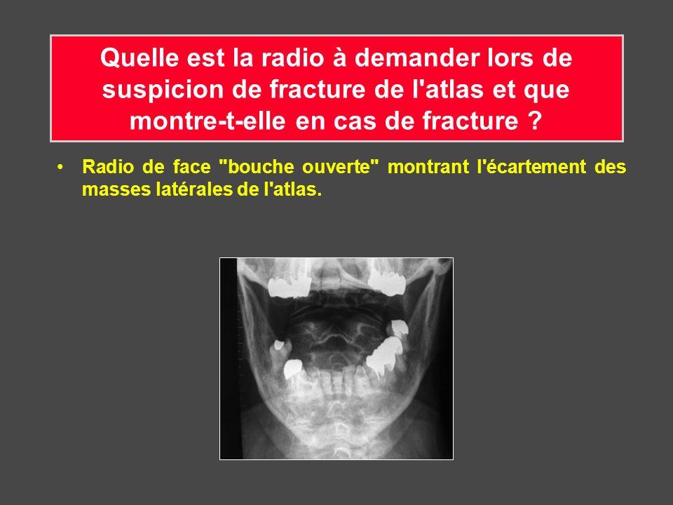 Quelle est la radio à demander lors de suspicion de fracture de l'atlas et que montre-t-elle en cas de fracture ? Radio de face
