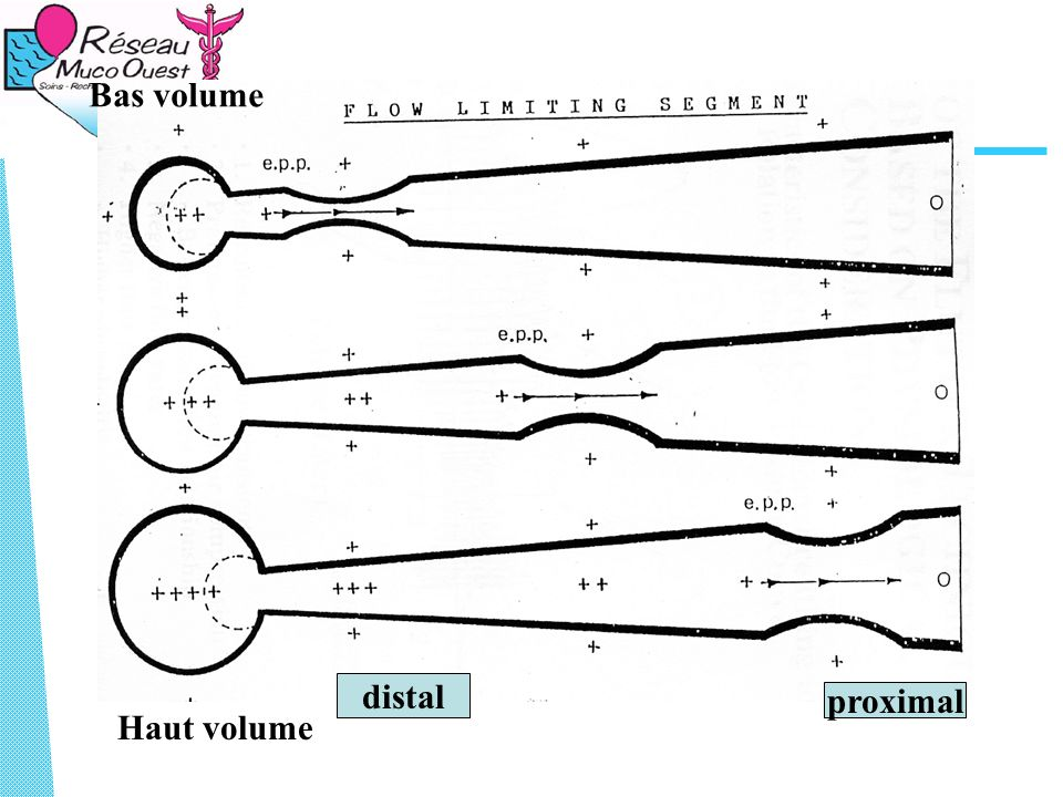 Bas volume Haut volume proximal distal