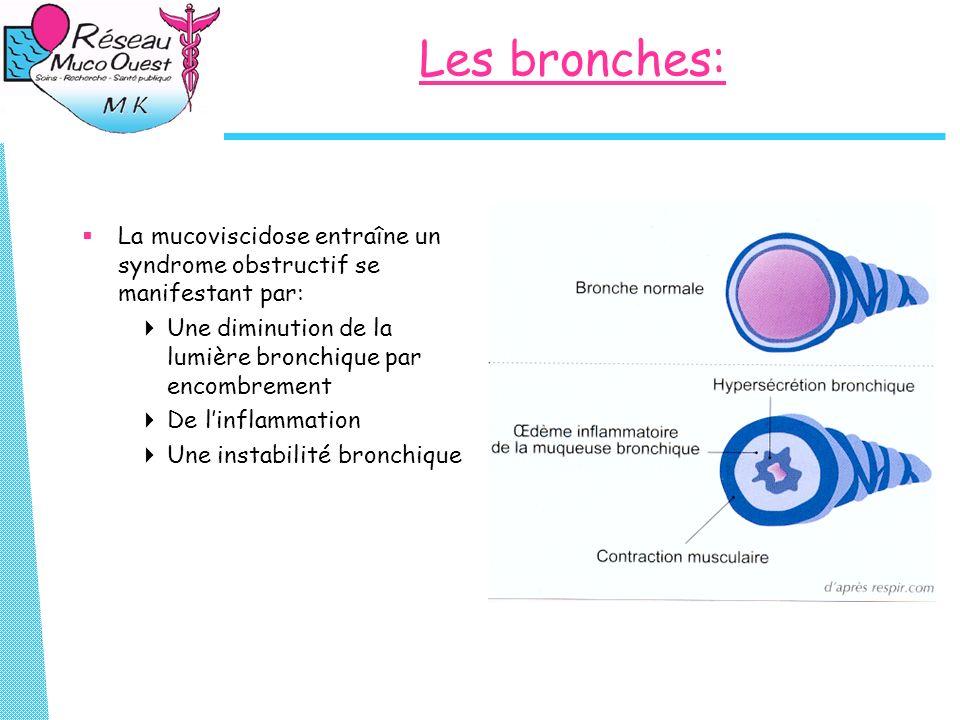 Les bronches: La mucoviscidose entraîne un syndrome obstructif se manifestant par: Une diminution de la lumière bronchique par encombrement De linflam