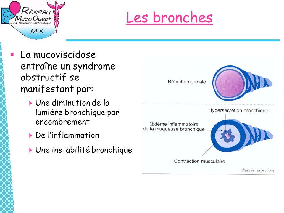 Les bronches La mucoviscidose entraîne un syndrome obstructif se manifestant par: Une diminution de la lumière bronchique par encombrement De linflamm