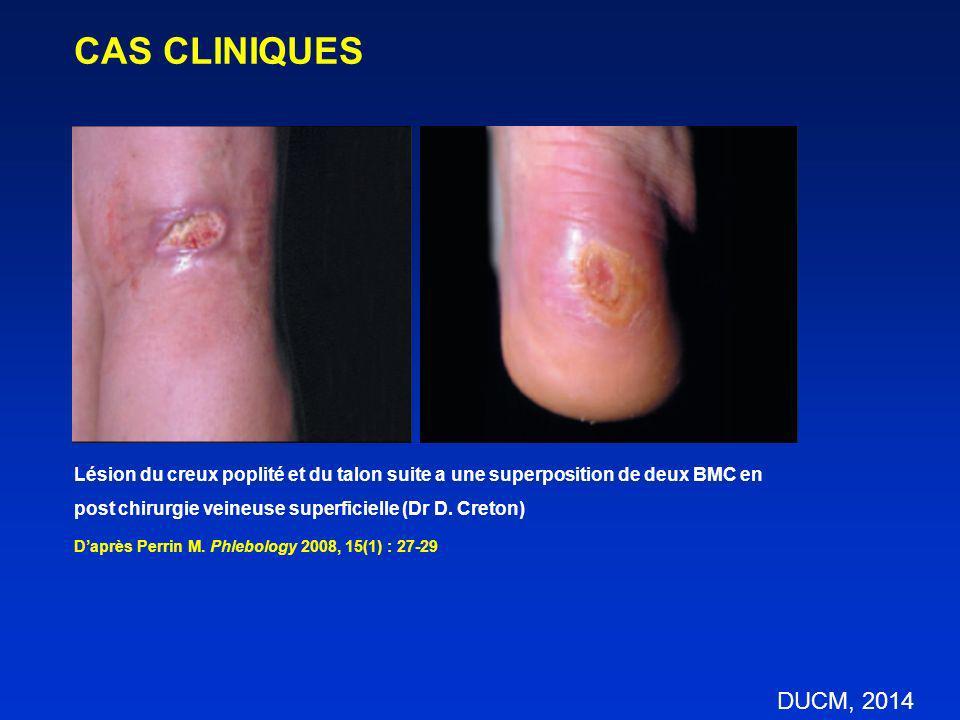 Lésion du creux poplité et du talon suite a une superposition de deux BMC en post chirurgie veineuse superficielle (Dr D. Creton) Daprès Perrin M. Phl